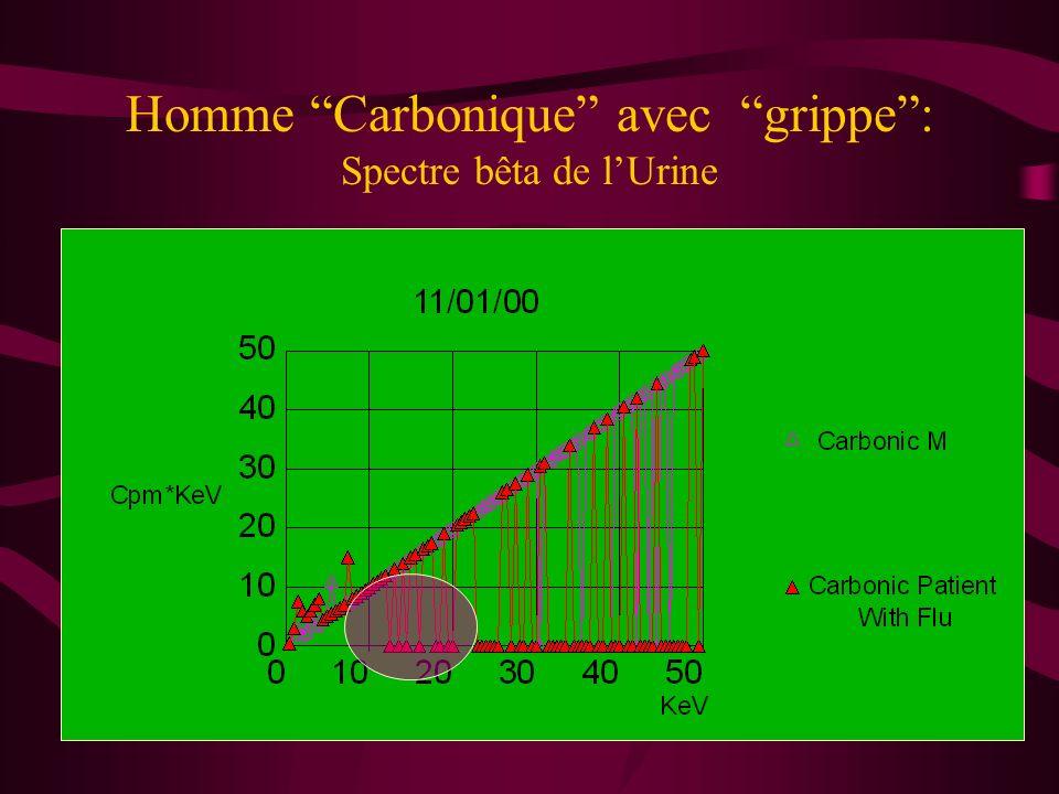 Interaction In vitro dun sérum de Cancéreux et dune Haute Dilution A 15 CK, les pics correspondant aux électrons de haute énergie sont pratiquement tous éliminés et le spectre ressemble pratiquement à celui obtenu à partir d un sujet sain.