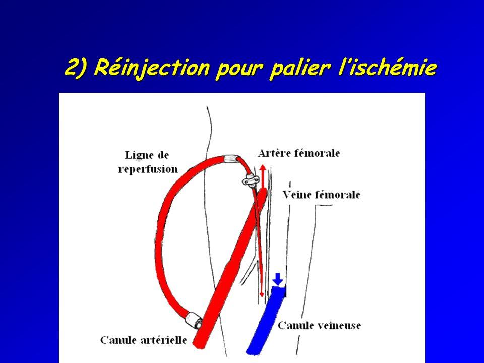 2) Réinjection pour palier lischémie