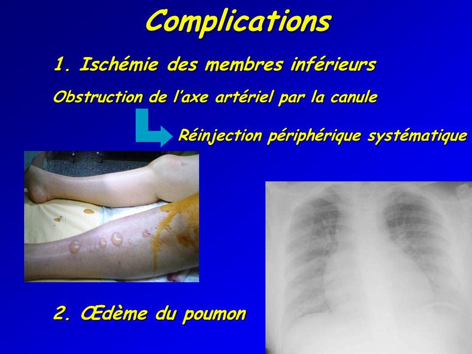 Complications 1. Ischémie des membres inférieurs Obstruction de laxe artériel par la canule Réinjection périphérique systématique 2. Œdème du poumon