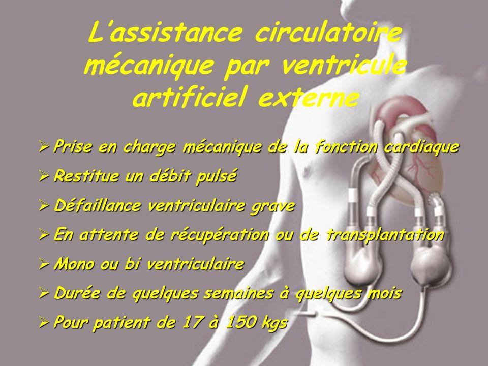 Lassistance circulatoire mécanique par ventricule artificiel externe Prise en charge mécanique de la fonction cardiaque Prise en charge mécanique de l