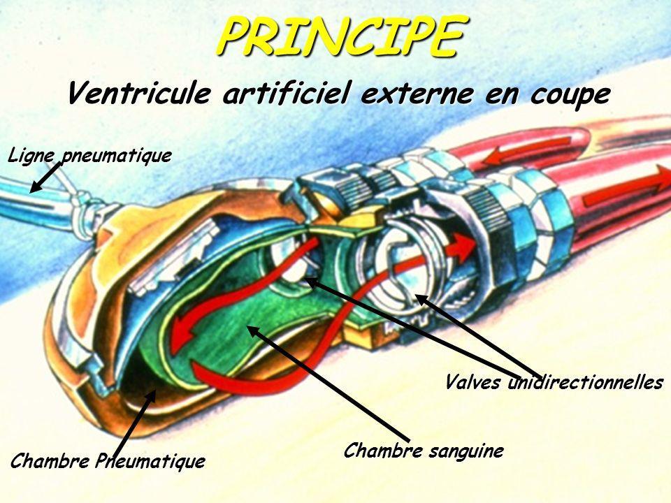 Chambre sanguine Chambre Pneumatique Valves unidirectionnelles Ventricule artificiel externe en coupe Ligne pneumatique PRINCIPE