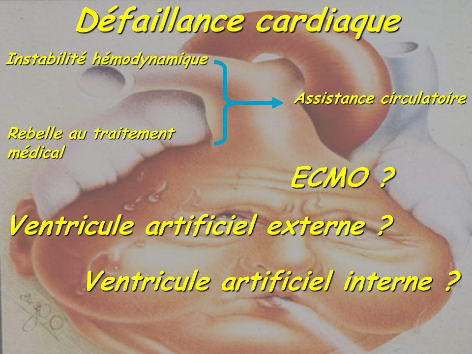 Instabilité hémodynamique Rebelle au traitement médical Assistance circulatoire Défaillance cardiaque ECMO ? Ventricule artificiel externe ? Ventricul