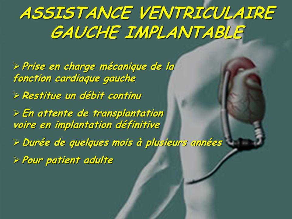 ASSISTANCE VENTRICULAIRE GAUCHE IMPLANTABLE Prise en charge mécanique de la fonction cardiaque gauche Prise en charge mécanique de la fonction cardiaq