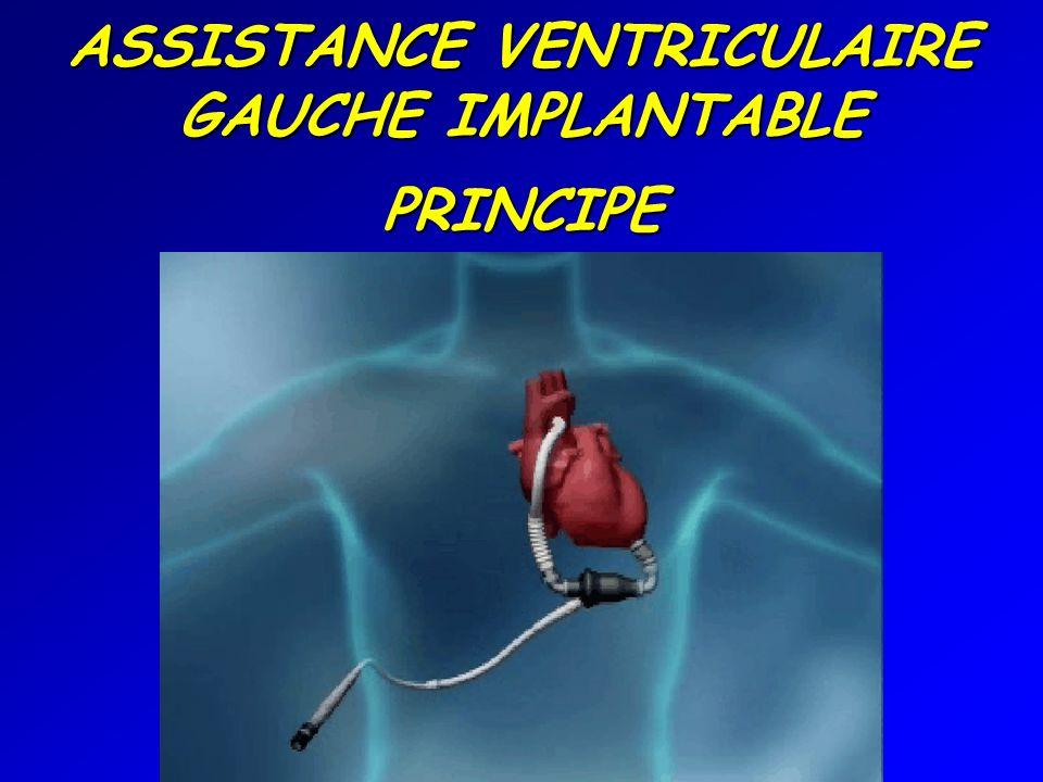 ASSISTANCE VENTRICULAIRE GAUCHE IMPLANTABLE PRINCIPE