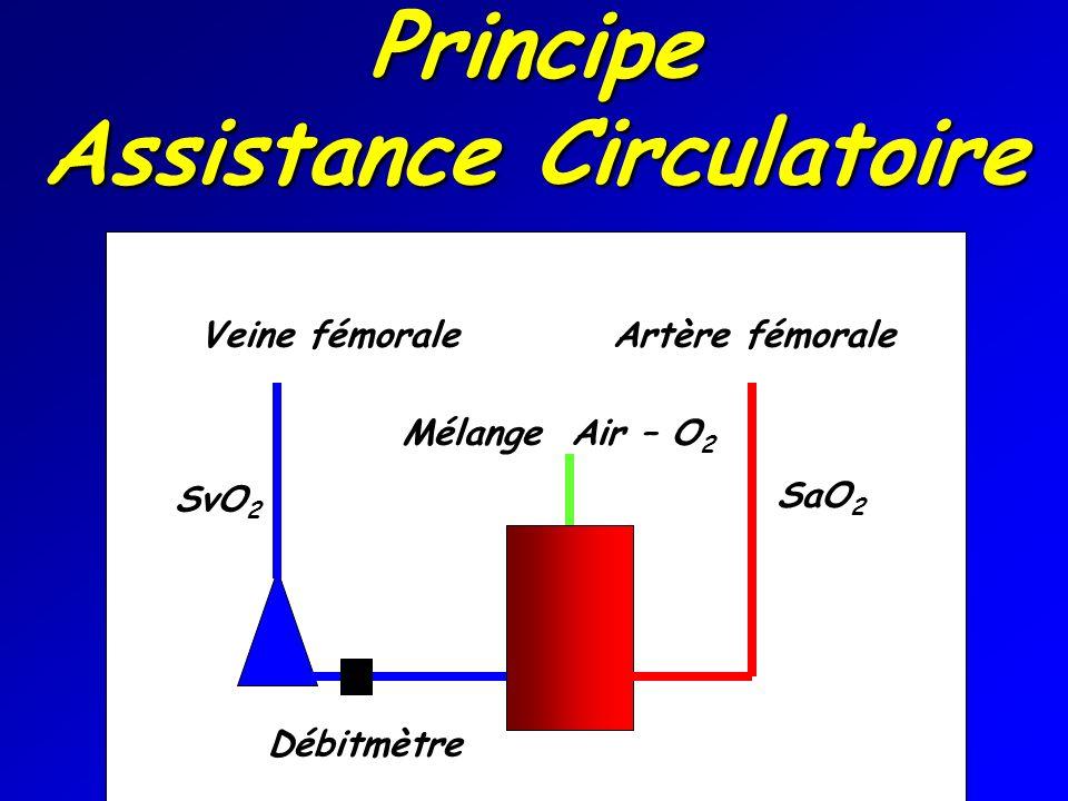 Principe Assistance Circulatoire Veine fémorale Artère fémorale SaO 2 SvO 2 Débitmètre Mélange Air – O 2