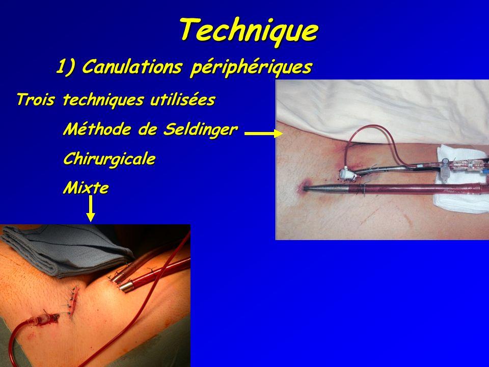 Technique 1) Canulations périphériques Trois techniques utilisées Méthode de Seldinger ChirurgicaleMixte