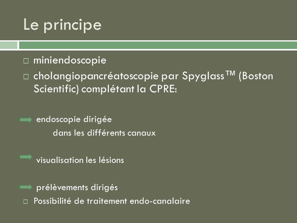 miniendoscopie cholangiopancréatoscopie par Spyglass (Boston Scientific) complétant la CPRE: endoscopie dirigée dans les différents canaux visualisati