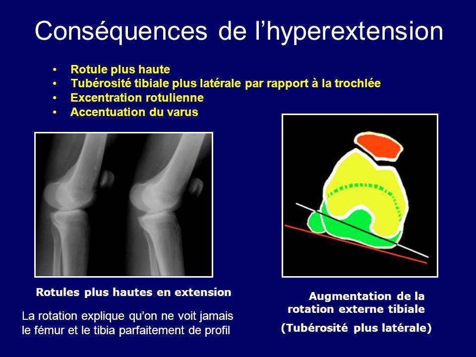 Conséquences de lhyperextension Rotule plus haute Tubérosité tibiale plus latérale par rapport à la trochlée Excentration rotulienne Accentuation du v