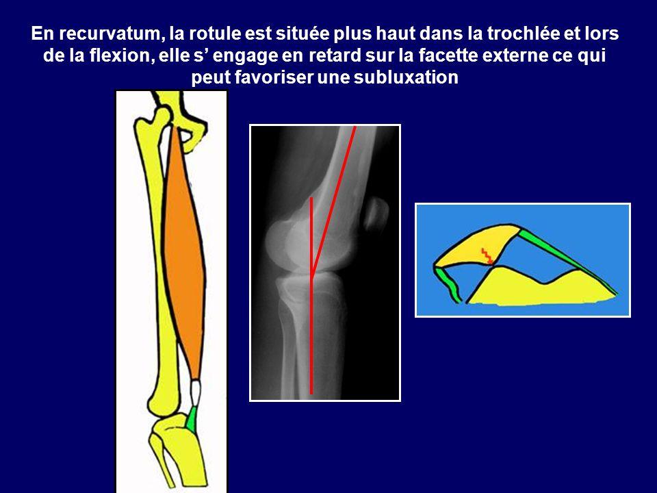En recurvatum, la rotule est située plus haut dans la trochlée et lors de la flexion, elle s engage en retard sur la facette externe ce qui peut favor
