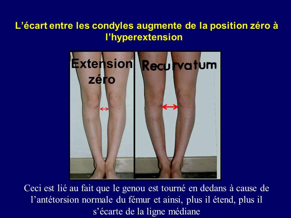 Lécart entre les condyles augmente de la position zéro à lhyperextension Ceci est lié au fait que le genou est tourné en dedans à cause de lantétorsio
