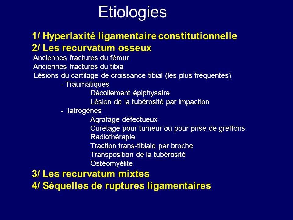 1/ Hyperlaxité ligamentaire constitutionnelle 2/ Les recurvatum osseux Anciennes fractures du fémur Anciennes fractures du tibia Lésions du cartilage