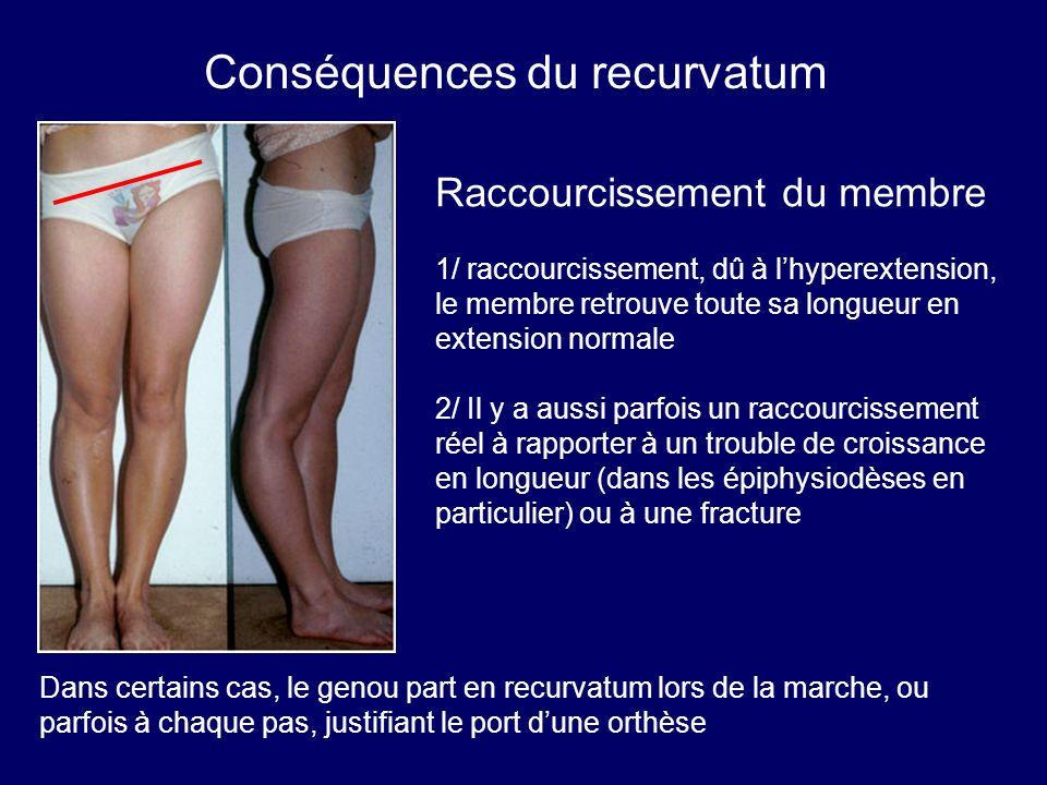 Raccourcissement du membre 1/ raccourcissement, dû à lhyperextension, le membre retrouve toute sa longueur en extension normale 2/ Il y a aussi parfoi