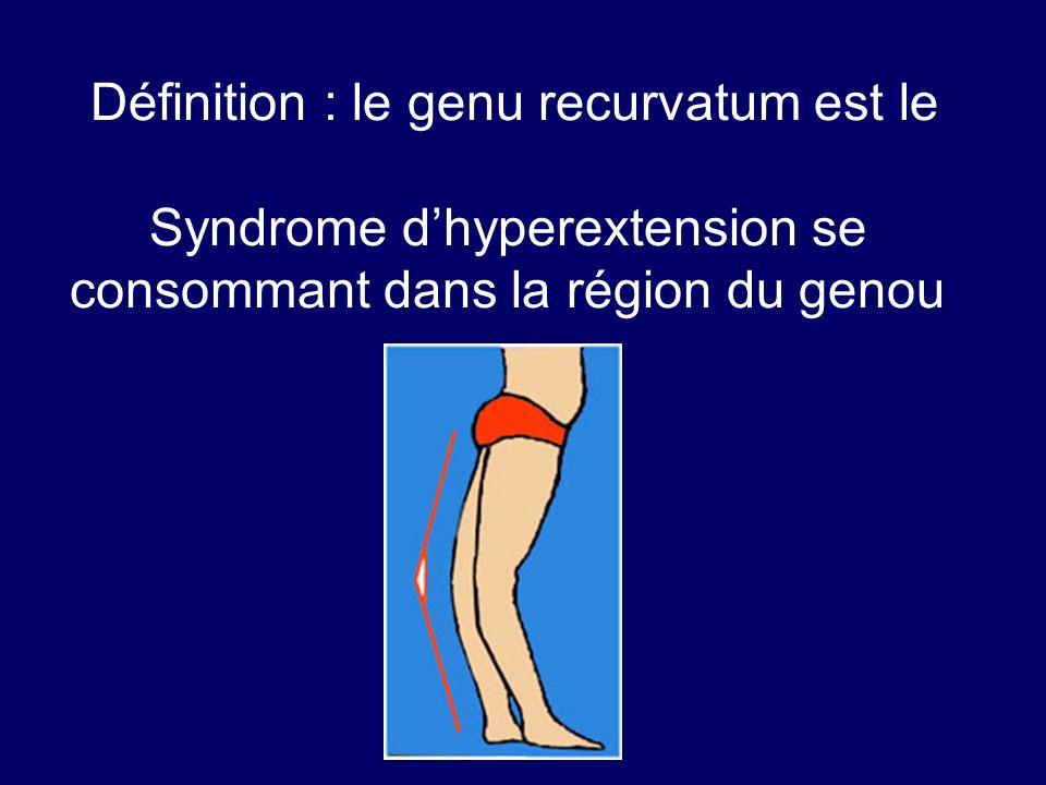 Définition : le genu recurvatum est le Syndrome dhyperextension se consommant dans la région du genou