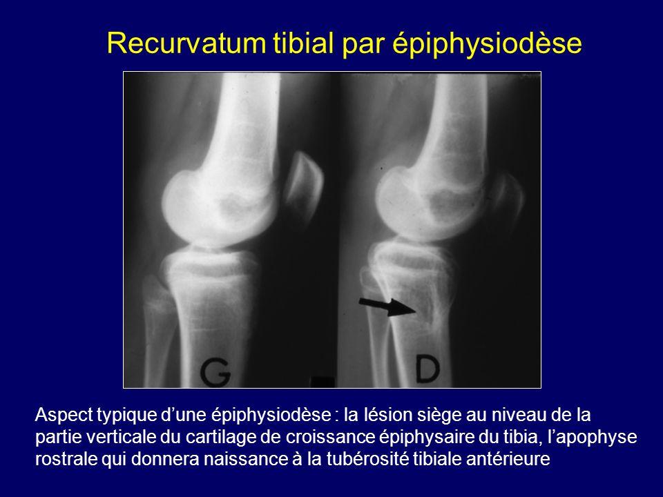 Aspect typique dune épiphysiodèse : la lésion siège au niveau de la partie verticale du cartilage de croissance épiphysaire du tibia, lapophyse rostra