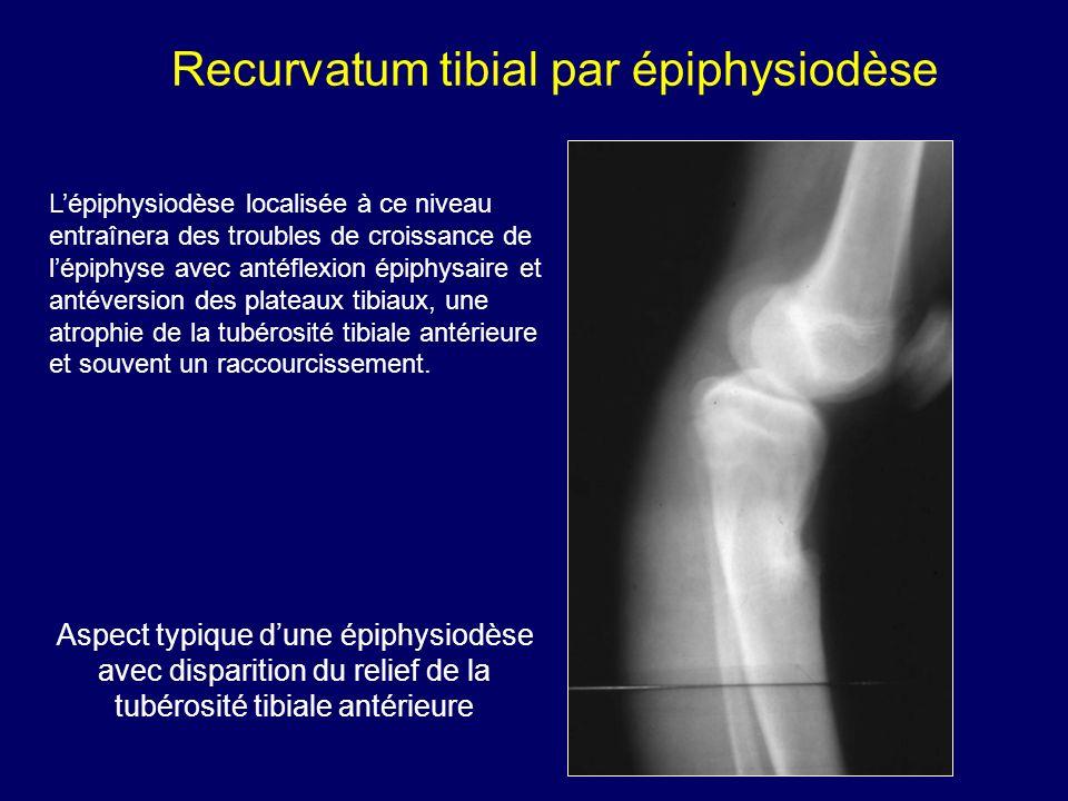 Aspect typique dune épiphysiodèse avec disparition du relief de la tubérosité tibiale antérieure Lépiphysiodèse localisée à ce niveau entraînera des t