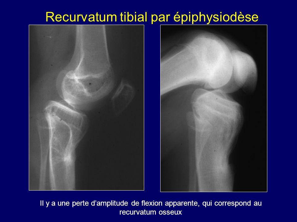 Il y a une perte damplitude de flexion apparente, qui correspond au recurvatum osseux Recurvatum tibial par épiphysiodèse