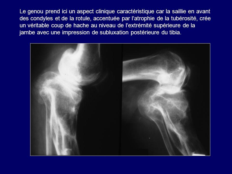 Le genou prend ici un aspect clinique caractéristique car la saillie en avant des condyles et de la rotule, accentuée par latrophie de la tubérosité,