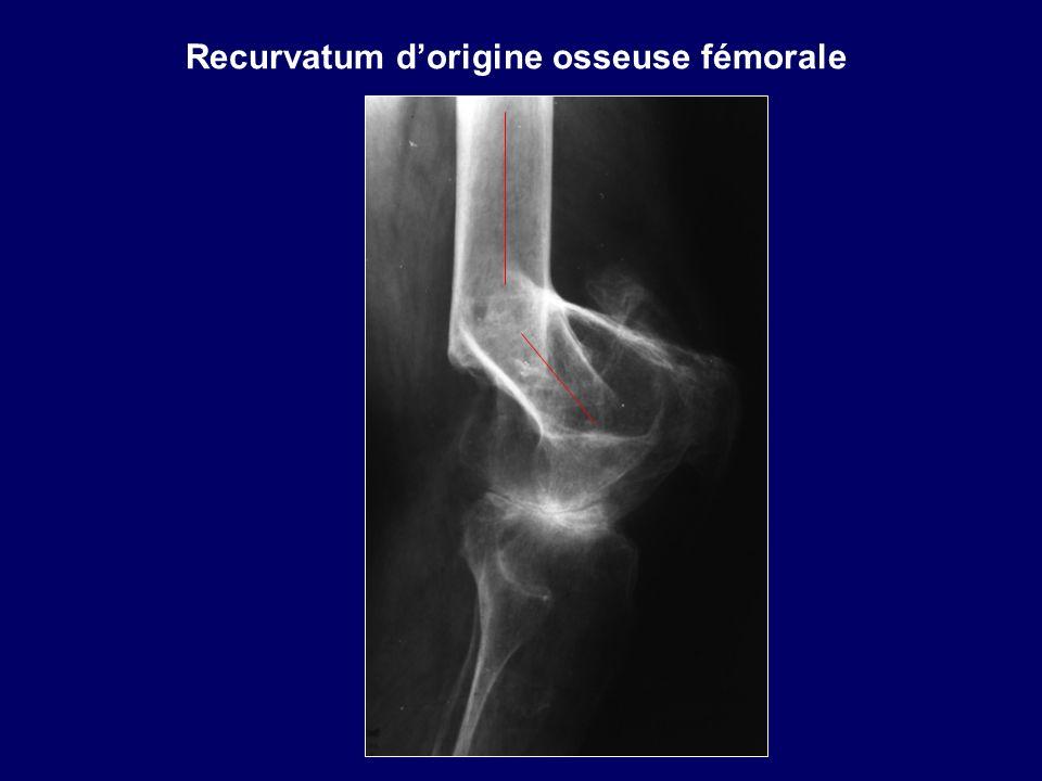 Recurvatum dorigine osseuse fémorale