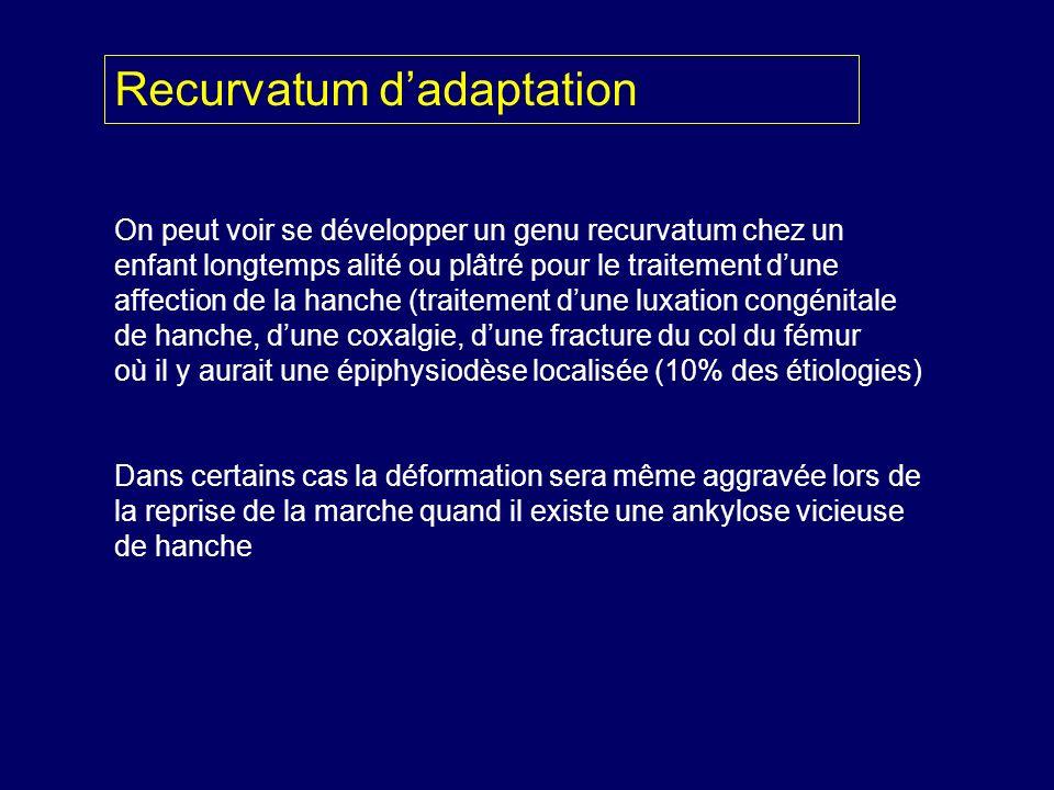 On peut voir se développer un genu recurvatum chez un enfant longtemps alité ou plâtré pour le traitement dune affection de la hanche (traitement dune
