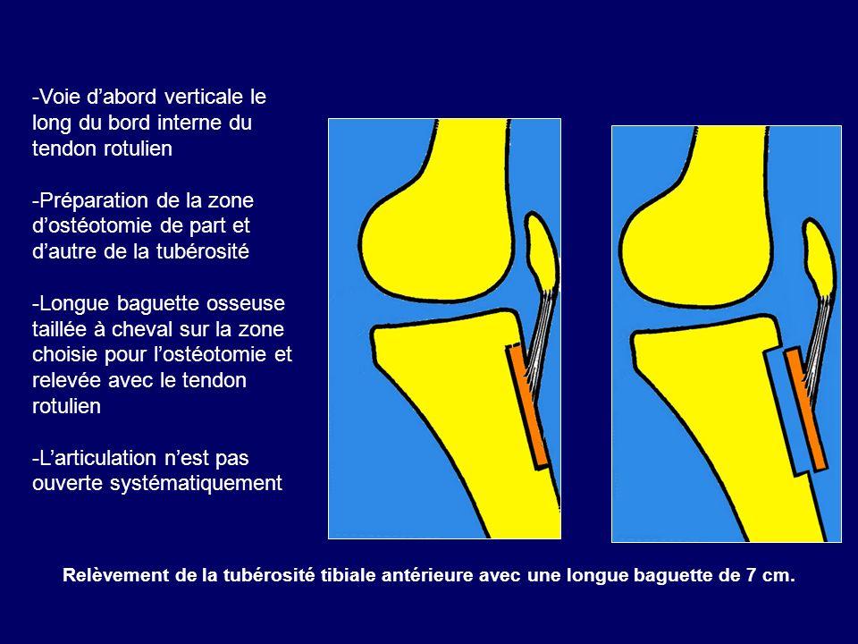 Relèvement de la tubérosité tibiale antérieure avec une longue baguette de 7 cm. -Voie dabord verticale le long du bord interne du tendon rotulien -Pr