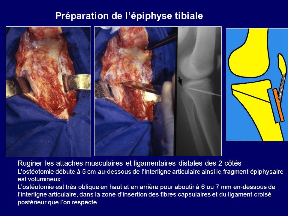 Ruginer les attaches musculaires et ligamentaires distales des 2 côtés Lostéotomie débute à 5 cm au-dessous de linterligne articulaire ainsi le fragme