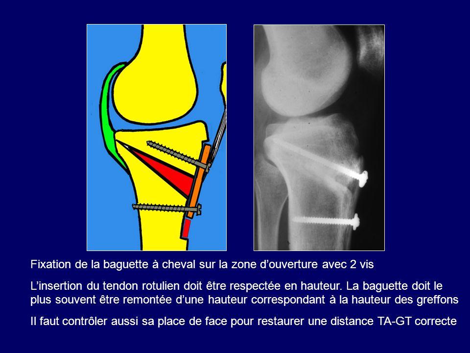 Fixation de la baguette à cheval sur la zone douverture avec 2 vis Linsertion du tendon rotulien doit être respectée en hauteur. La baguette doit le p