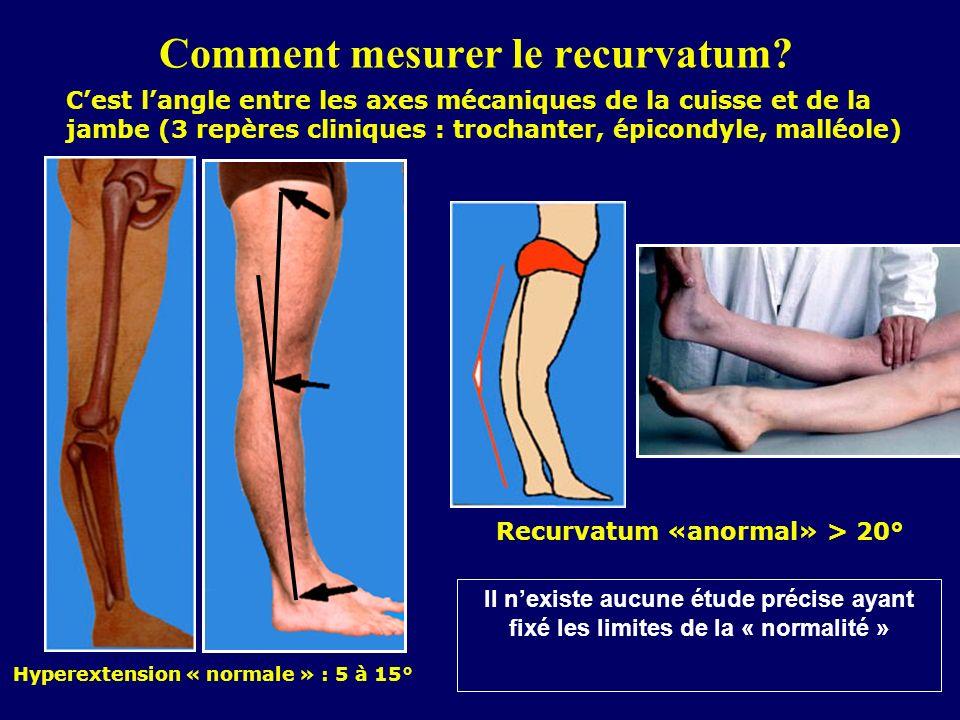 Comment mesurer le recurvatum? Hyperextension « normale » : 5 à 15° Recurvatum «anormal» > 20° Cest langle entre les axes mécaniques de la cuisse et d