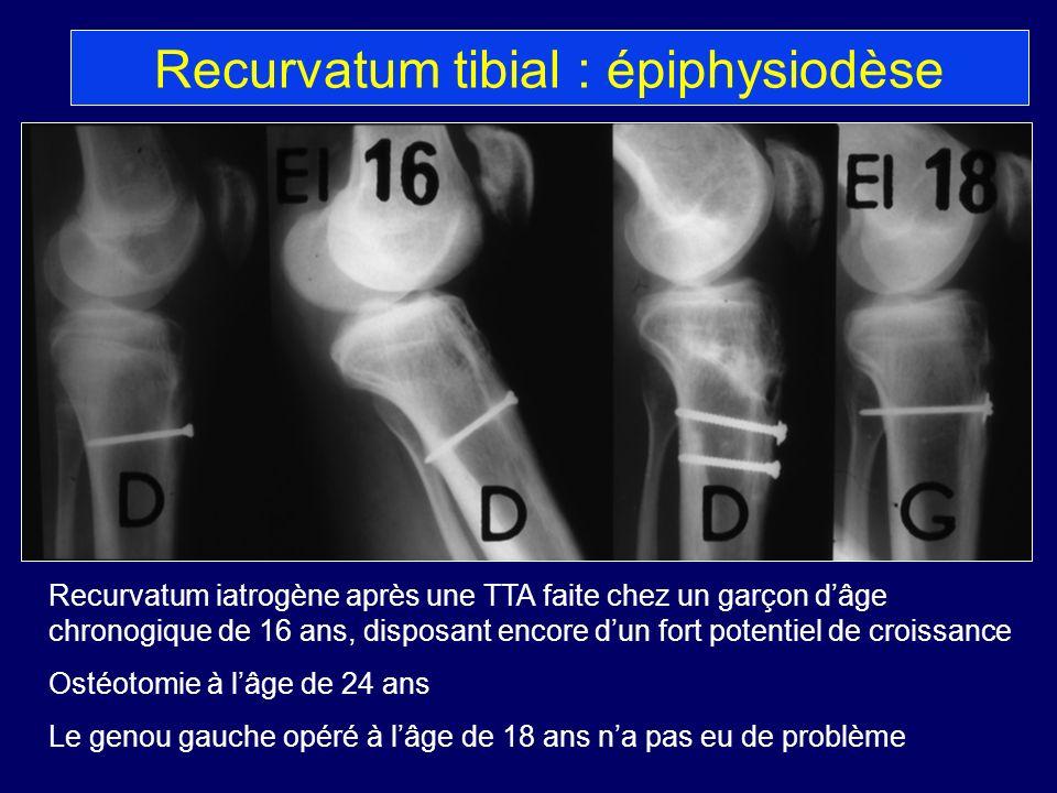 Recurvatum iatrogène après une TTA faite chez un garçon dâge chronogique de 16 ans, disposant encore dun fort potentiel de croissance Ostéotomie à lâg