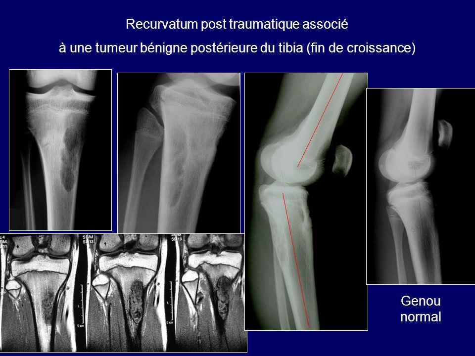 Recurvatum post traumatique associé à une tumeur bénigne postérieure du tibia (fin de croissance) Genou normal