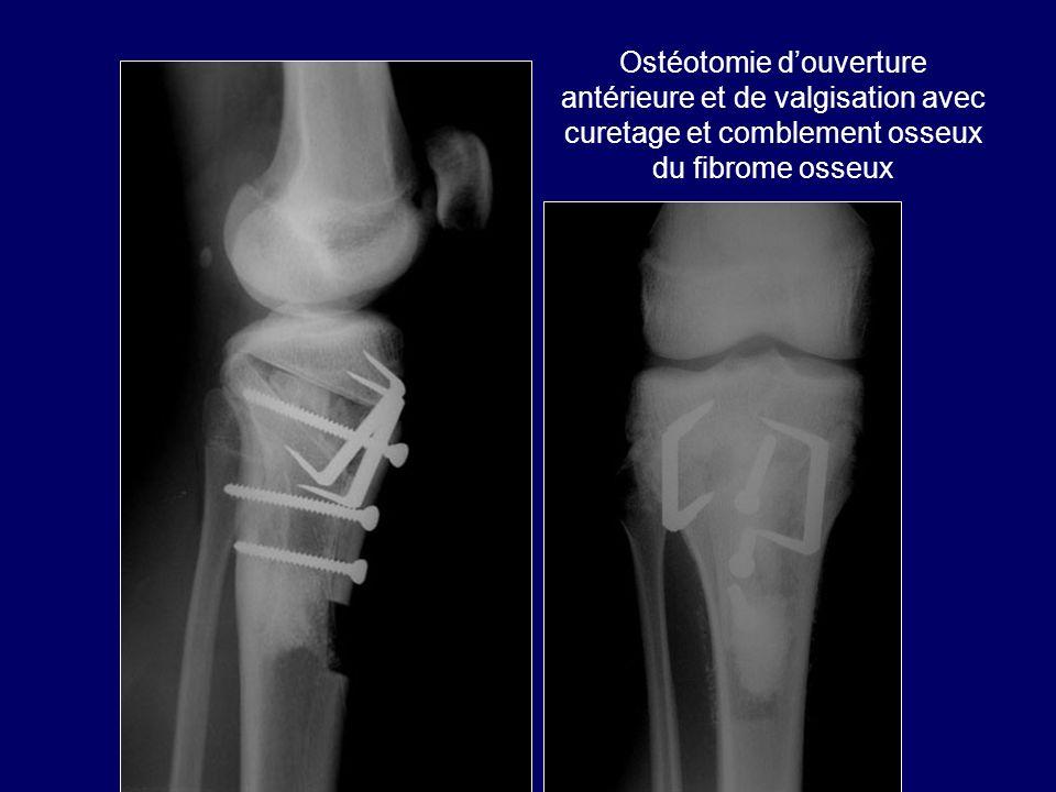 Ostéotomie douverture antérieure et de valgisation avec curetage et comblement osseux du fibrome osseux