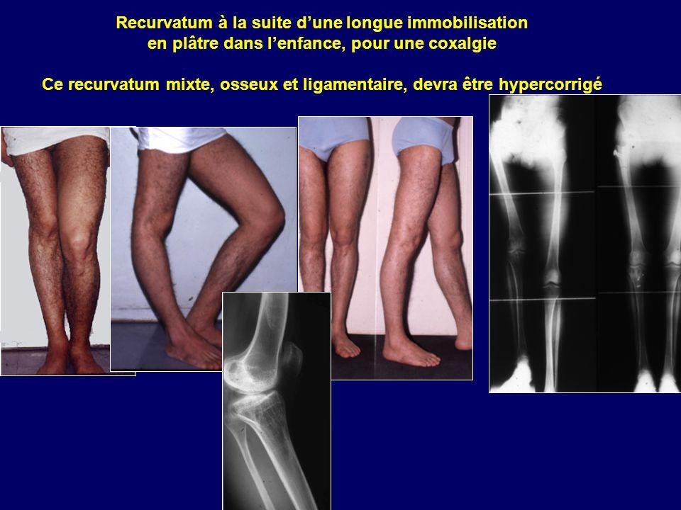 Recurvatum à la suite dune longue immobilisation en plâtre dans lenfance, pour une coxalgie Ce recurvatum mixte, osseux et ligamentaire, devra être hy