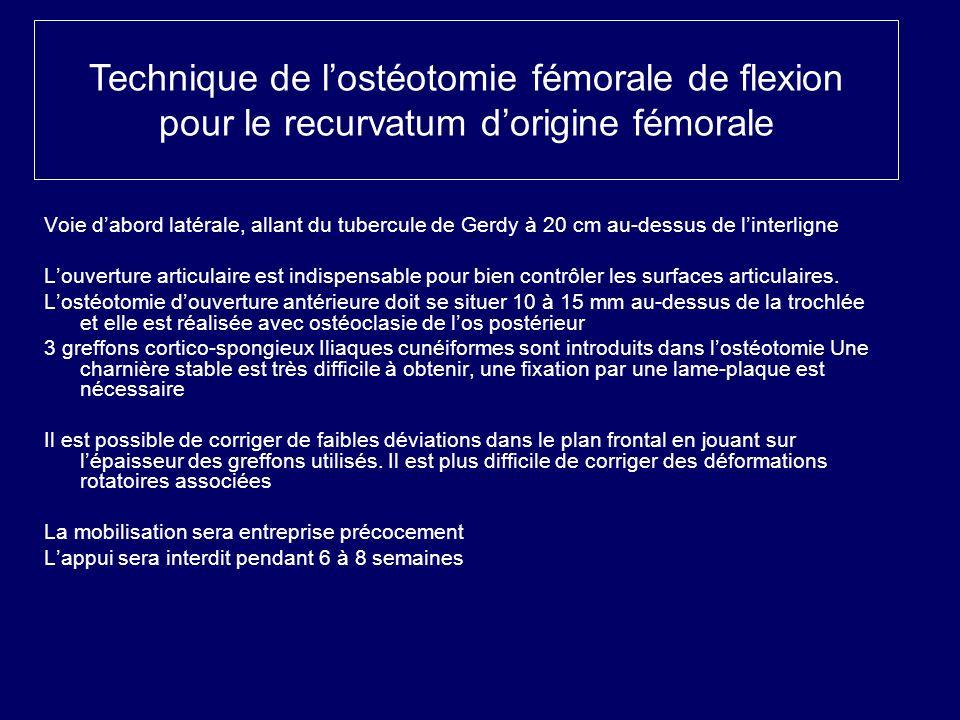 Technique de lostéotomie fémorale de flexion pour le recurvatum dorigine fémorale Voie dabord latérale, allant du tubercule de Gerdy à 20 cm au-dessus