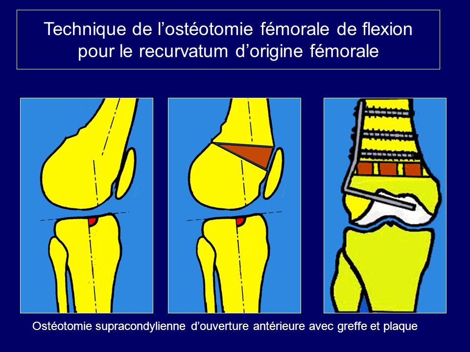 Technique de lostéotomie fémorale de flexion pour le recurvatum dorigine fémorale Ostéotomie supracondylienne douverture antérieure avec greffe et pla