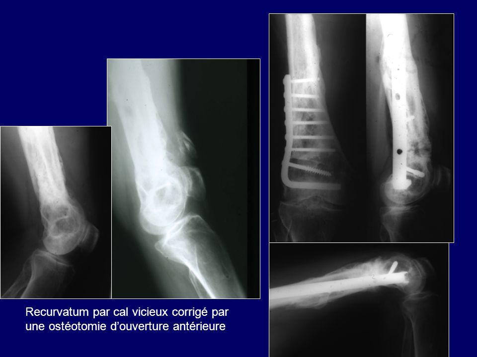 Recurvatum par cal vicieux corrigé par une ostéotomie douverture antérieure