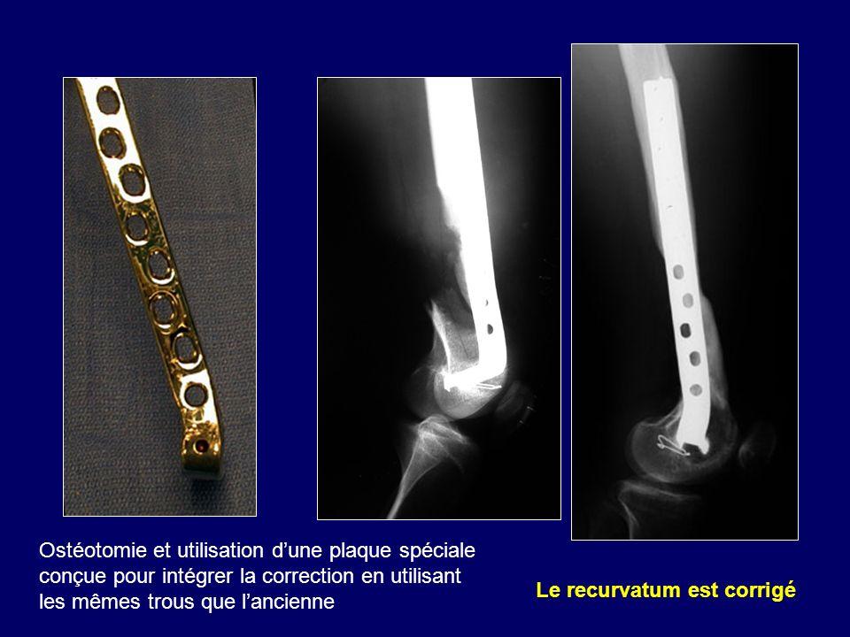 Le recurvatum est corrigé Ostéotomie et utilisation dune plaque spéciale conçue pour intégrer la correction en utilisant les mêmes trous que lancienne