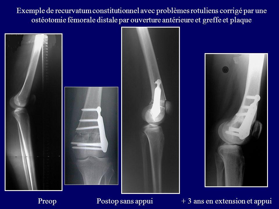 Exemple de recurvatum constitutionnel avec problèmes rotuliens corrigé par une ostéotomie fémorale distale par ouverture antérieure et greffe et plaqu