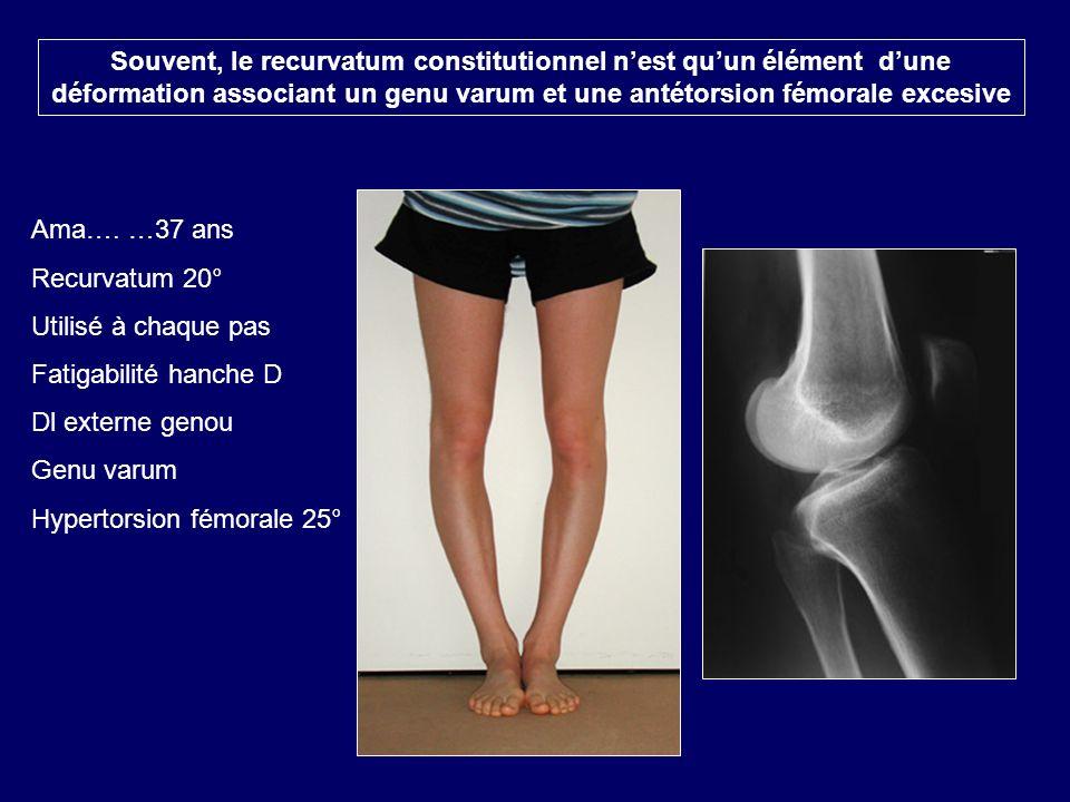 Ama…. …37 ans Recurvatum 20° Utilisé à chaque pas Fatigabilité hanche D Dl externe genou Genu varum Hypertorsion fémorale 25° Souvent, le recurvatum c