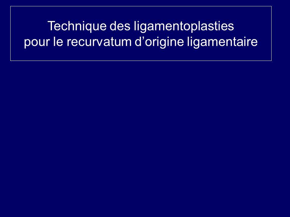 Technique des ligamentoplasties pour le recurvatum dorigine ligamentaire