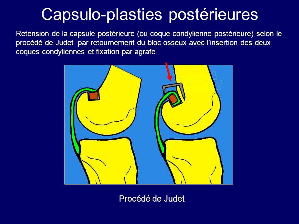 Capsulo-plasties postérieures Retension de la capsule postérieure (ou coque condylienne postérieure) selon le procédé de Judet par retournement du blo