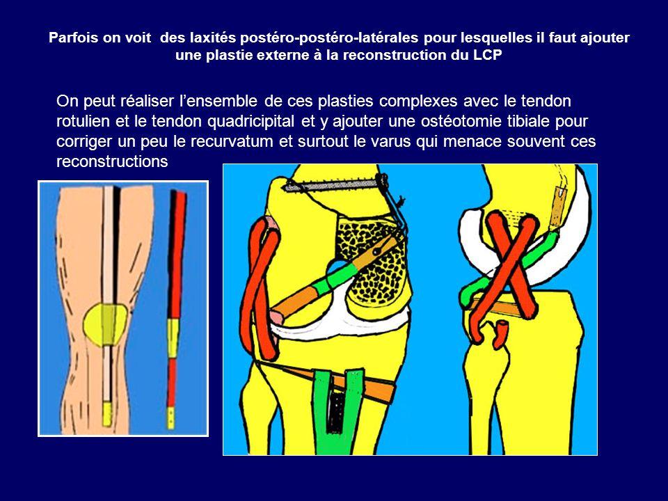 Parfois on voit des laxités postéro-postéro-latérales pour lesquelles il faut ajouter une plastie externe à la reconstruction du LCP On peut réaliser
