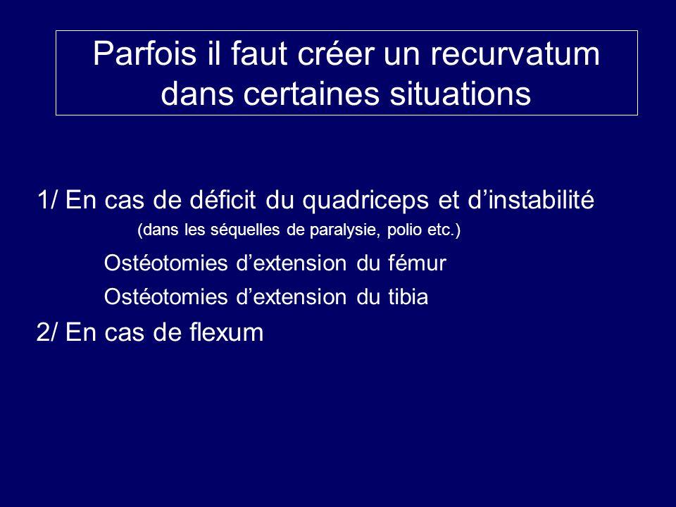 Parfois il faut créer un recurvatum dans certaines situations 1/ En cas de déficit du quadriceps et dinstabilité (dans les séquelles de paralysie, pol