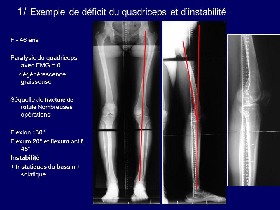 F - 46 ans Paralysie du quadriceps avec EMG = 0 dégénérescence graisseuse Séquelle de fracture de rotule Nombreuses opérations Flexion 130° Flexum 20°