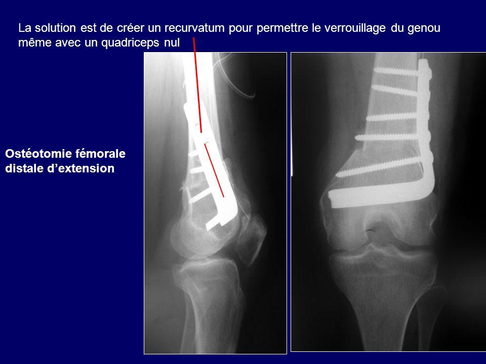 La solution est de créer un recurvatum pour permettre le verrouillage du genou même avec un quadriceps nul Ostéotomie fémorale distale dextension