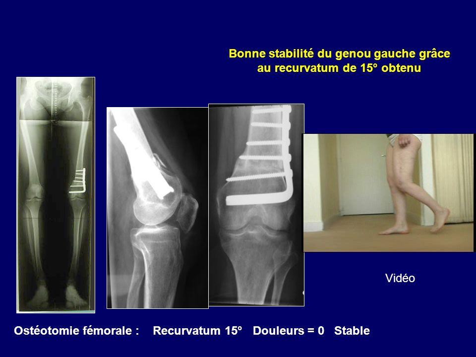 Ostéotomie fémorale : Recurvatum 15° Douleurs = 0 Stable Bonne stabilité du genou gauche grâce au recurvatum de 15° obtenu Vidéo