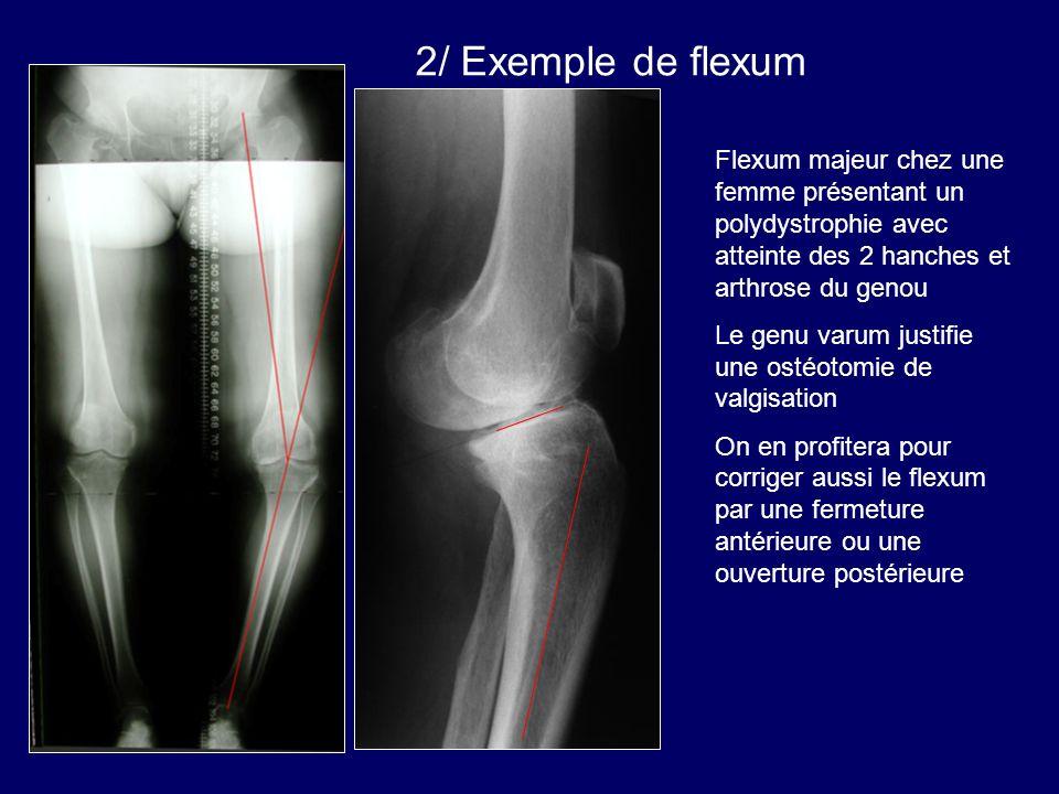 Flexum majeur chez une femme présentant un polydystrophie avec atteinte des 2 hanches et arthrose du genou Le genu varum justifie une ostéotomie de va