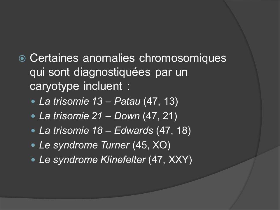 Certaines anomalies chromosomiques qui sont diagnostiquées par un caryotype incluent : La trisomie 13 – Patau (47, 13) La trisomie 21 – Down (47, 21)