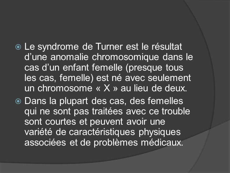 Le syndrome de Turner est le résultat dune anomalie chromosomique dans le cas dun enfant femelle (presque tous les cas, femelle) est né avec seulement
