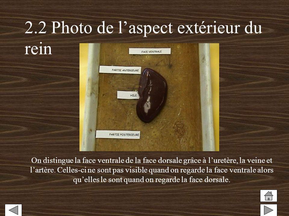 2.2 Photo de laspect extérieur du rein On distingue la face ventrale de la face dorsale grâce à luretère, la veine et lartère. Celles-ci ne sont pas v