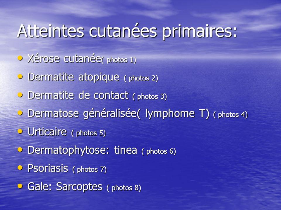 Atteintes cutanées primaires: Xérose cutanée ( photos 1) Xérose cutanée ( photos 1) Dermatite atopique ( photos 2) Dermatite atopique ( photos 2) Derm
