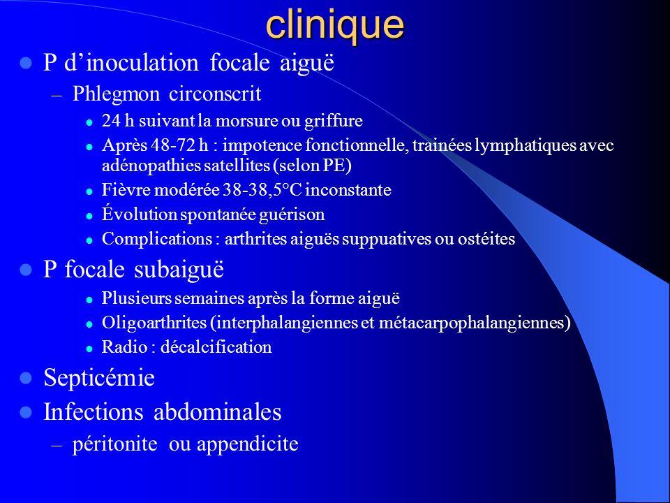 clinique P dinoculation focale aiguë – Phlegmon circonscrit 24 h suivant la morsure ou griffure Après 48-72 h : impotence fonctionnelle, trainées lymp